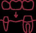 Zahnersatz wie Kronen, Brücken und Prothesen